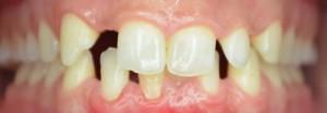 Zähne ohne Veneers | Zahnarzt Korschenbroich Dr. Hoppe Dr. Boeger