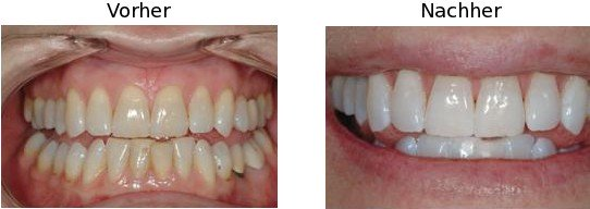 Bleaching vorher-nachher | Dr. Hoppe Dr. Boeger Korschenbroich