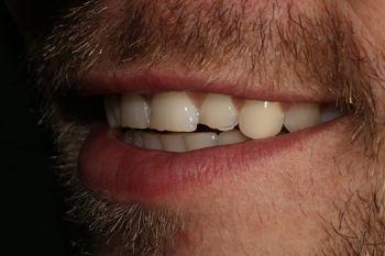 Eingeschränkte Frontzahnästhetik links :: © Hoppe.Dental, Korschenbroich – Zahnärzte im Rheinland