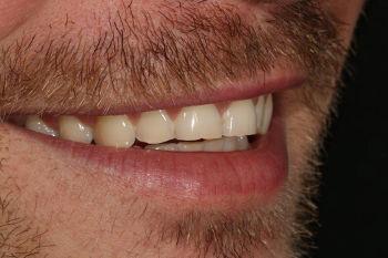 Eingeschränkte Frontzahnästhetik rechts :: © Hoppe.Dental, Korschenbroich – Zahnärzte im Rheinland