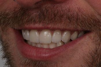 Wiederhergestellte Frontzahnästhetik links :: © Hoppe.Dental, Korschenbroich – Zahnärzte im Rheinland