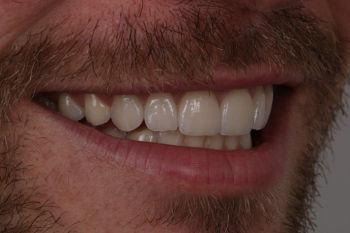 Wiederhergestellte Frontzahnästhetik rechts :: © Hoppe.Dental, Korschenbroich – Zahnärzte im Rheinland